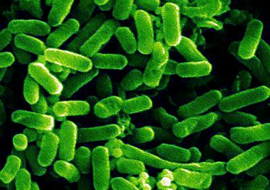 What you should know about E Coli